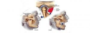 TemporoMandibular Joint Dysfunction Syndrome (TMJPDS) explained
