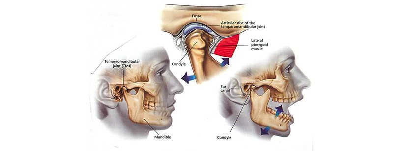 TemporoMandibular Joint Dysfunction Syndrome (TMJPDS) explained