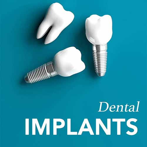 Dental Implants In Sunnybank Hills
