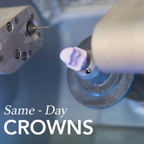 Same-Day Crown