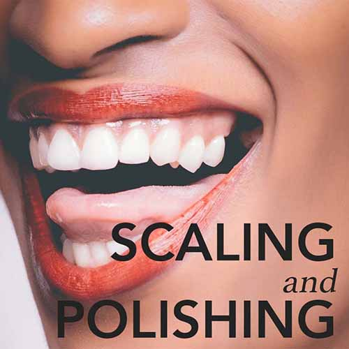 Scaling and Polish
