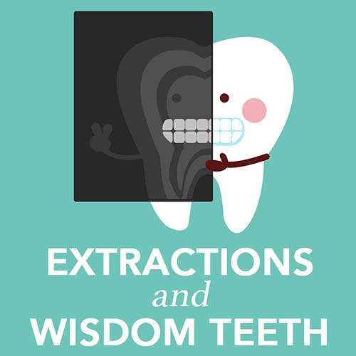 Extraction and Oral Surgery