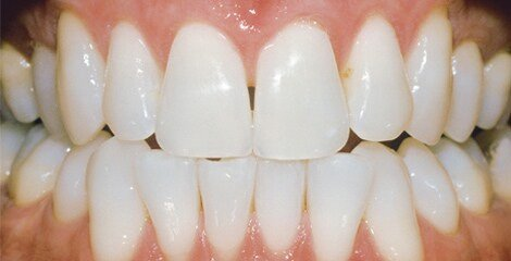 zoom-teeth-whitening-after