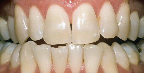 zoom-teeth-whitening-before