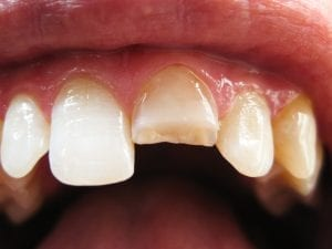 Cracked Chipped Tooth
