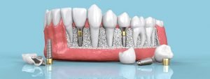 How do DENTAL IMPLANTS Replace Teeth?