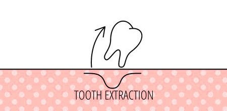 Tooth Extractions and Oral Surgery Sunnybank