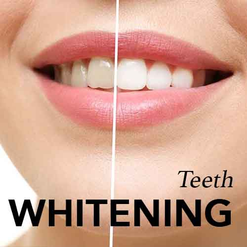 Teeth Whitening Sunnybank Hills