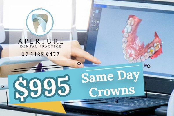 Same Day Crown at Aperture Dental Sunnybank Hills