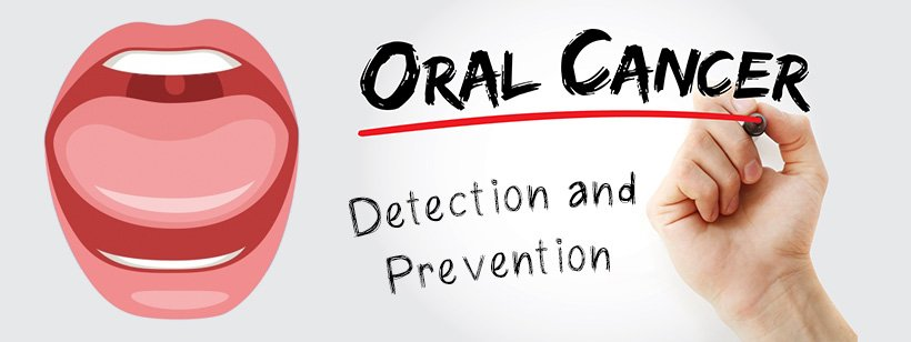 Oral Cancer – Detection and Prevention
