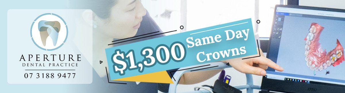 same-day-crown4